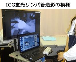 ICG蛍光リンパ管造影の模様