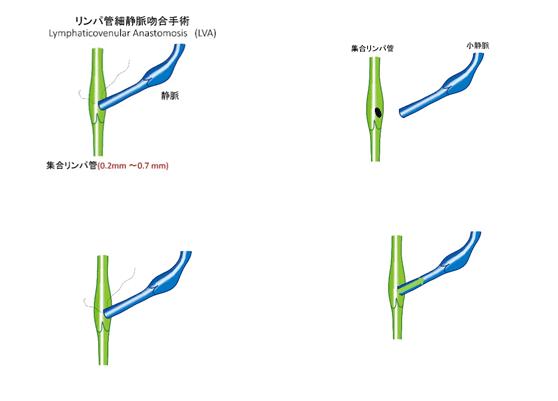 リンパ管吻合手術の方法