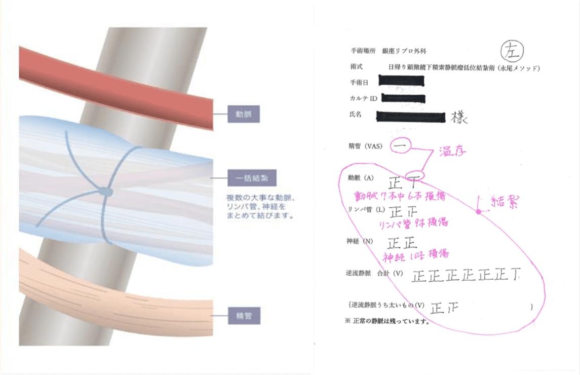 一般的に行われている手術(一括結紮法・時短法)との違い