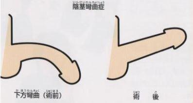 先天性陰茎彎曲症の術前と術後