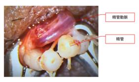 手術後の精管の画像