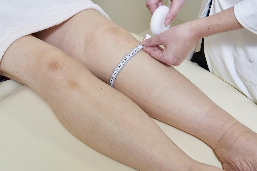 リンパ浮腫手術前の計測_下肢